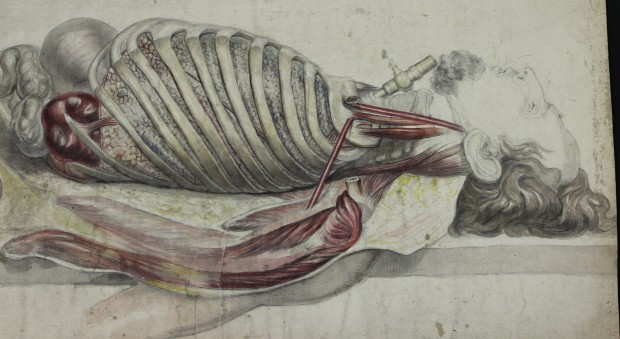 Colour drawing of a dissected body, drawn from the side, showing the intact head, opened torso, and tracheotomy equipment