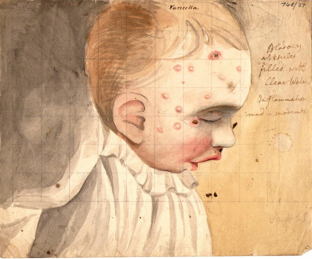 Colour drawing of a child with chickenpox