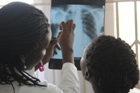 Physicians examining a chest X-ray