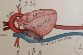 Diseases of the heart and circulation in infancy and adolescence. John M Keating and William A Edwards, published Philadelphia, 1888