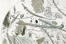 Drawing of a microscope slide sample of air from a cholera ward